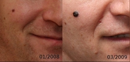 Опухолевые изменения кожи: 311 нм опасны или не желательны