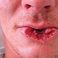 Как жить без губы?