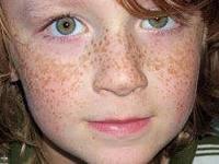 Меланин - кожа - веснушки