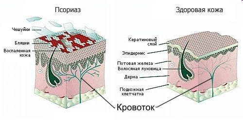 эпидермис и дерма при псориазе