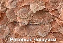 Роговые чешуйки эпидермиса